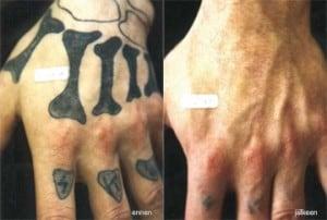 tattoo_3-300x202