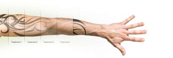Tatuoinnin poisto laserilla