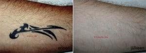 tattoo_2-300x110