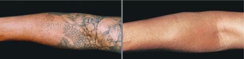 tatuointi-varsi