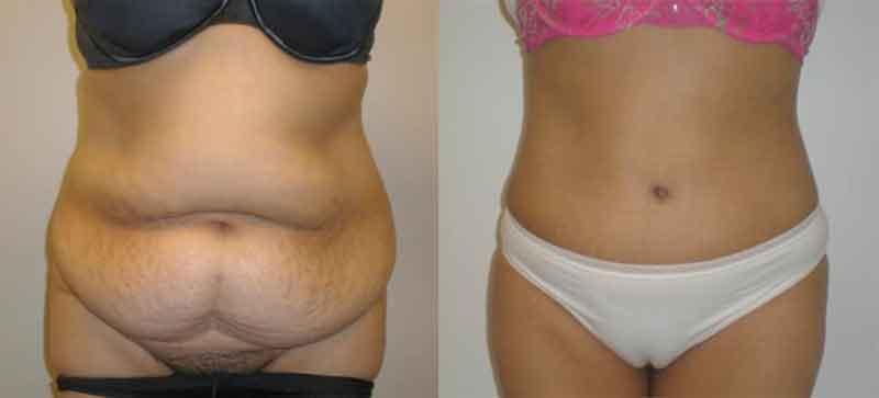 vatsan muotoilu - abdominoplastia3