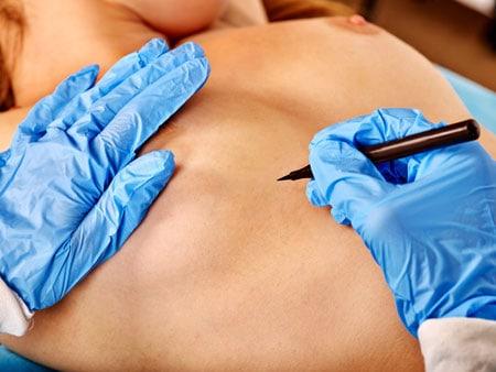 silikonirinnat leikkaus A