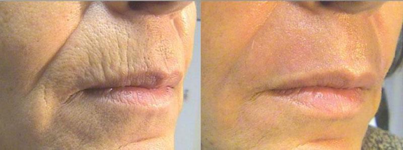 laserhoito ennen ja jälkeen