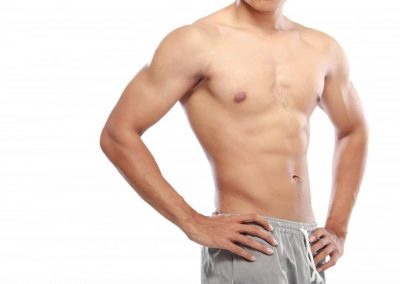 男性吸脂术