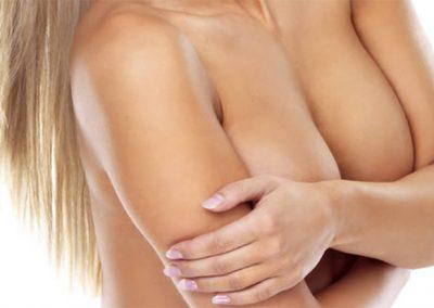 Rasvansiirto rintoihin